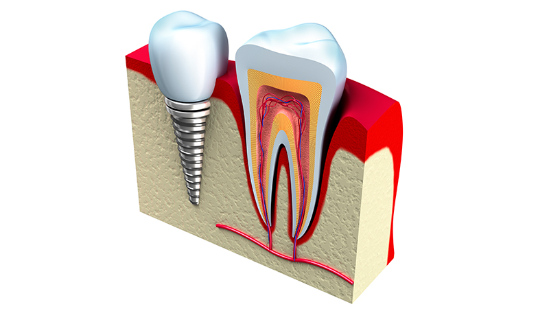 Implantes dentales en Huesca Alins Clinica Dental