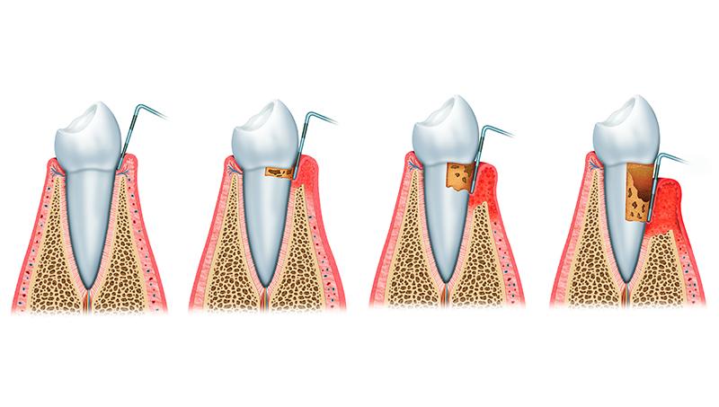 periodoncia en Huesca Alins Clinica Dental