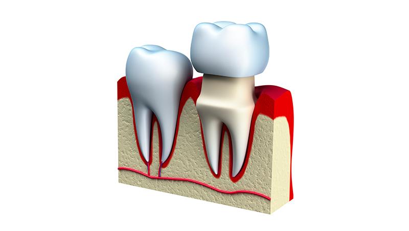 Prostodoncia en Huesca Alins Clinica Dental
